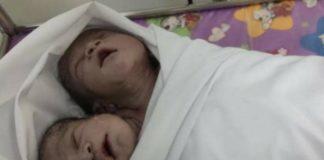 dziecko z dwiema głowami