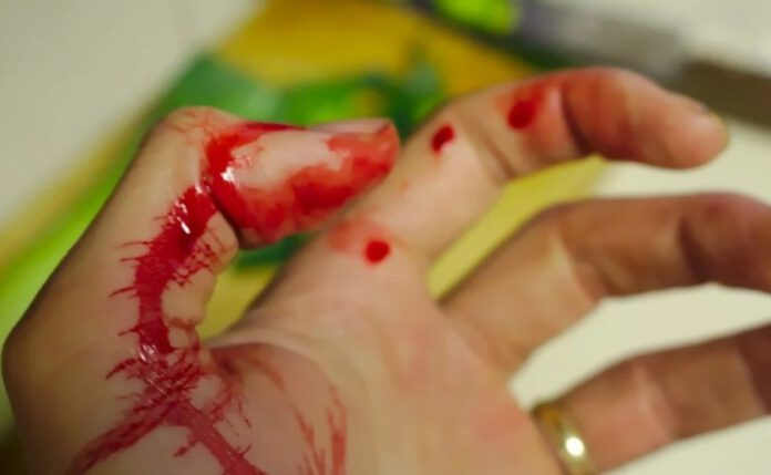 atak nożownika